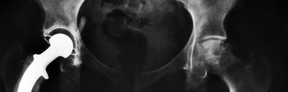 Depuy Hips & Medical Negligence Cases